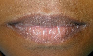 The vermilion borders of the lips should be smooth