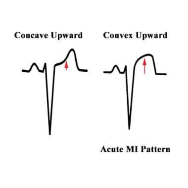 Electrocardiography: Overview, ECG Indications and