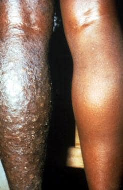 Patient from Cameroon with sowdalike lesions.