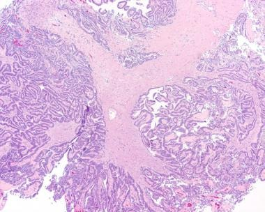 Low-power appearance of a choroid plexus papilloma