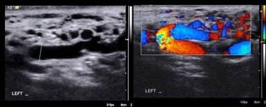 Varicocele and color-flow mapping. Courtesy of Shl