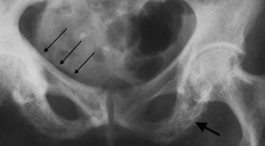 Anteroposterior radiograph of the pelvis demonstra