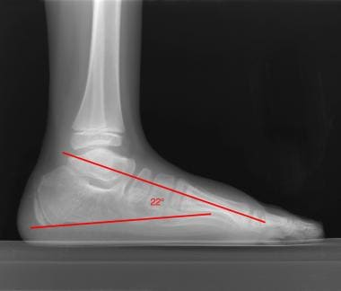 Postoperative lateral view of a clubfoot shows per