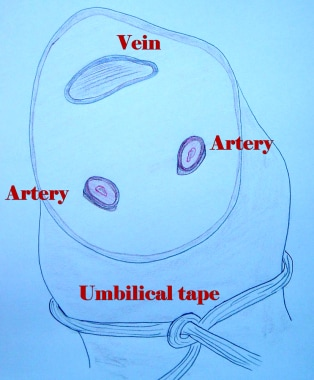Illustration of umbilical vein and arteries.