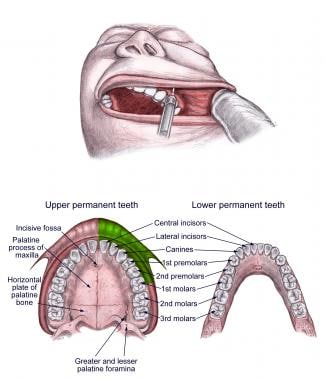 Oral Nerve Block: Overview, Indications, Contraindications