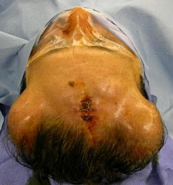Picture of scalp before removing inflated expander