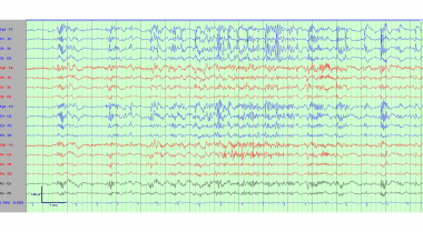 Electroencephalogram demonstrating a run of genera