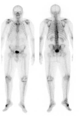 Tc-99m MDP whole body bone scan showing typical an