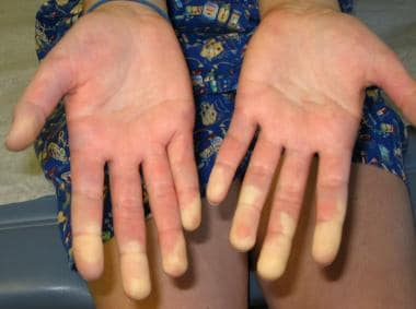Raynaud phenomenon is a common feature of mixed co