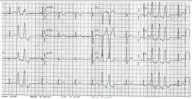 Electrical alternans. This electrocardiogram shows