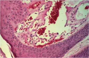 Histopathology reveals blood-filled vessels, compo