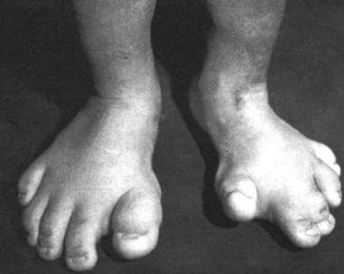 Proteus syndrome with gigantism of the feet and ma