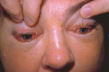 A patient with trichinosis and ocular involvement.