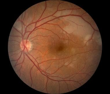 Color fundus photo of left eye with branch retinal