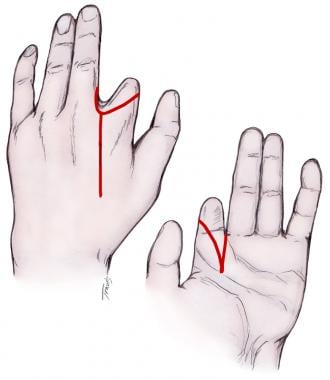In performing an index ray amputation, a dorsal lo