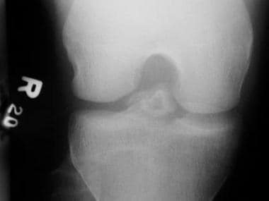 Tunnel view of intercondylar eminence fracture.
