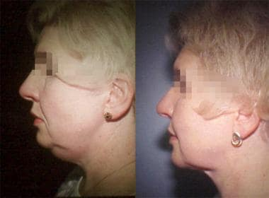 Woman aged 45 years. Left – Preoperative. Right –
