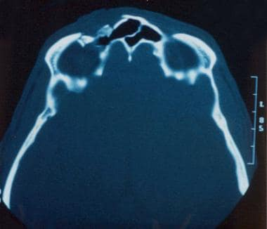 CT scan showing frontal sinus fracture with commin