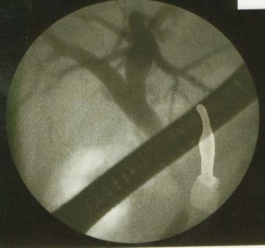 Endoscopic retrograde cholangiopancreatography (ER