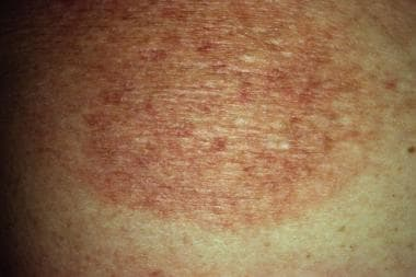 Patch-stage cutaneous T-cell lymphoma. Courtesy of