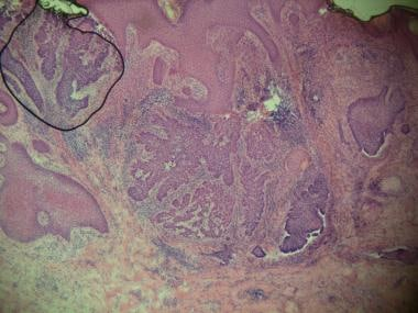 Basosquamous basal cell carcinoma. Foci of neoplas