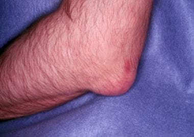 Gout. Tophaceous deposits on elbow.