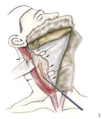 The fascia over the sternocleidomastoid (SCM) musc