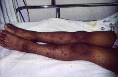 A 7-year-old girl with IgA vasculitis (Henoch-Schö