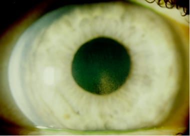 Pigmentary Glaucoma: Practice Essentials, Background ... Krukenberg Spindle