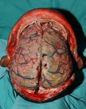 Purulent meningitis in a 34-year-old man with acut
