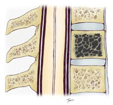 In a vertebral hemangioma, the fine trabeculae are