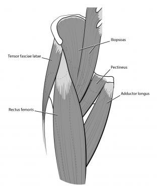 Hip muscles, anterior view.