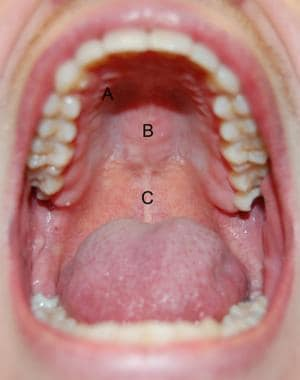 Hard and soft palate anatomy. A: transverse rugae