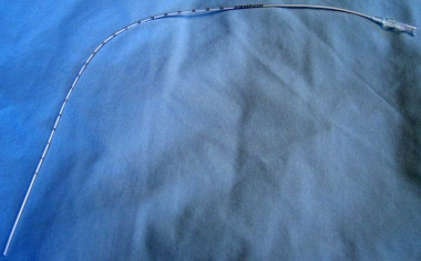 Umbilical catheter (5 French). Note proximal attac