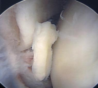 Arthroscopic view of a loose body.