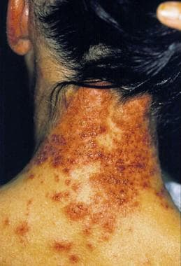 Erythema multiformelike reaction that developed ac