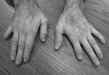 The distal portions of several fingers are shorten