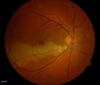 Color fundus photo of right eye with inferior bran
