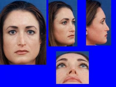 Tip Rhinoplasty Treatment & Management: Surgical Therapy