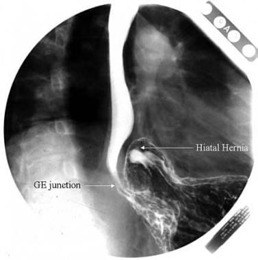 A paraesophageal hernia is seen on an upper gastro