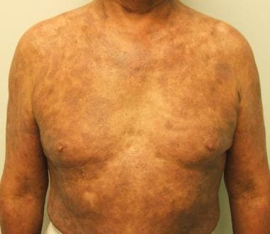 Cutaneous T-Cell Lymphoma Clinical Presentation: History