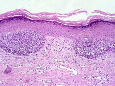 Histology of superficial basal cell carcinoma. Nes