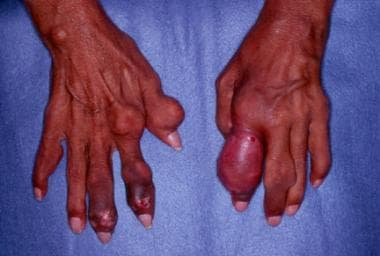 Gout. Chronic tophaceous gout in untreated patient