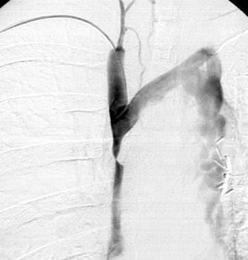 Superior vena cava syndrome (case 1, continued). V