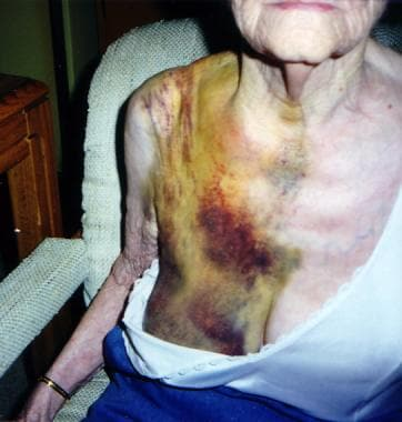 This 80-year-old woman presented 1 week after a fa