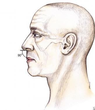 Rhinoplasty, tip ptosis. Tip rotation can be asses