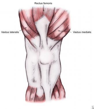 Patellar Injury and Dislocation: Background, Epidemiology ...