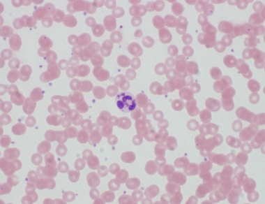 Dysplastic neutrophil with large pseudo-Chediak-Hi