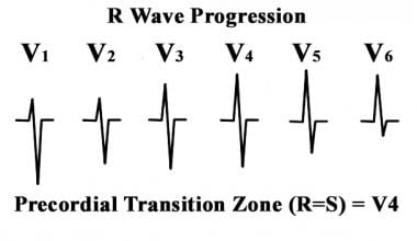 R-wave progression.