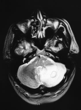 T2-weighted MRI demonstrates intense edema surroun